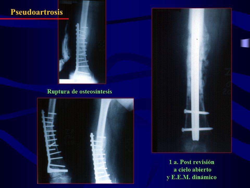 Ruptura de osteosíntesis 1 a. Post revisión a cielo abierto a cielo abierto y E.E.M. dinámico Pseudoartrosis