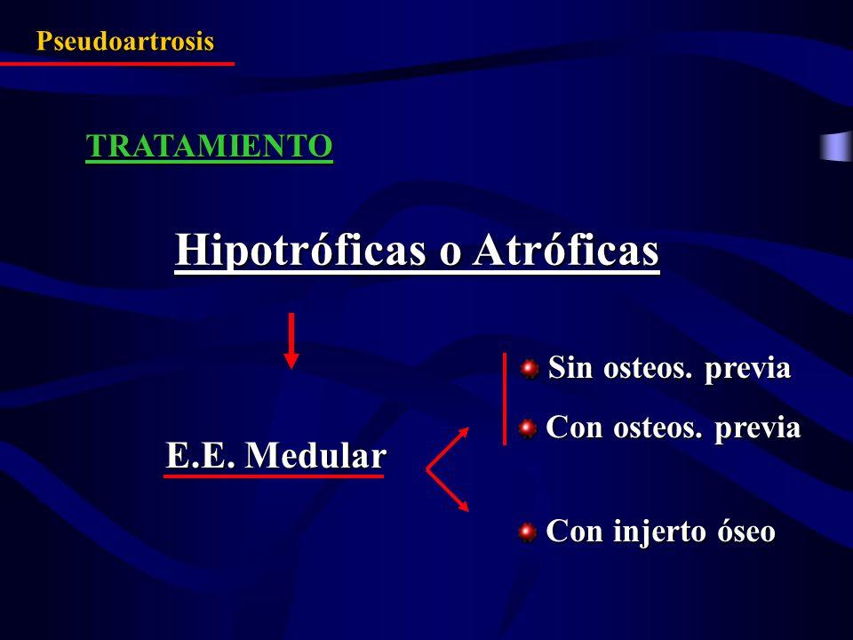 TRATAMIENTO Pseudoartrosis Hipotróficas o Atróficas E.E. Medular Sin osteos. previa Sin osteos. previa Con osteos. previa Con osteos. previa Con injer