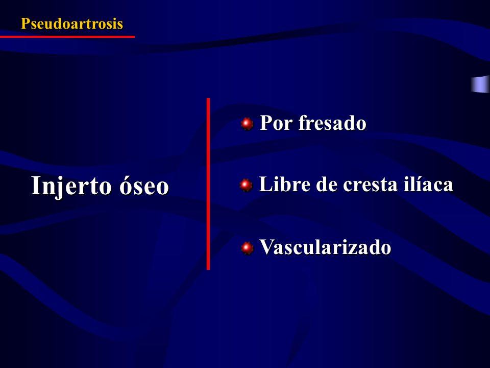 Injerto óseo Libre de cresta ilíaca Libre de cresta ilíaca Vascularizado Vascularizado Pseudoartrosis Por fresado Por fresado