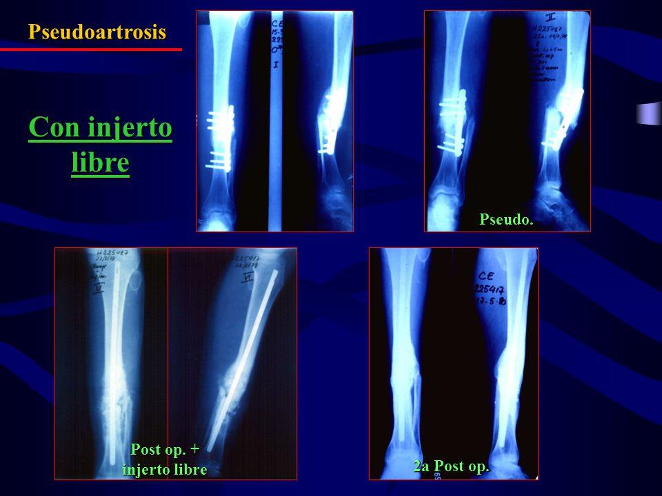 Pseudoartrosis Pseudo. Post op. + injerto libre 2a Post op. Con injerto libre
