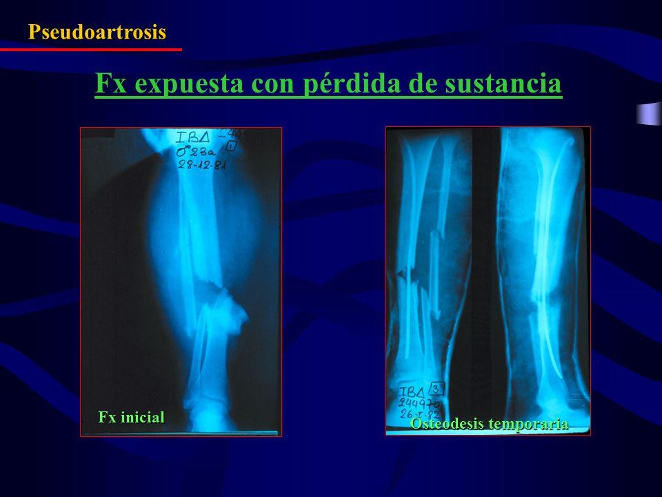 Pseudoartrosis Fx expuesta con pérdida de sustancia Fx inicial Osteodesis temporaria