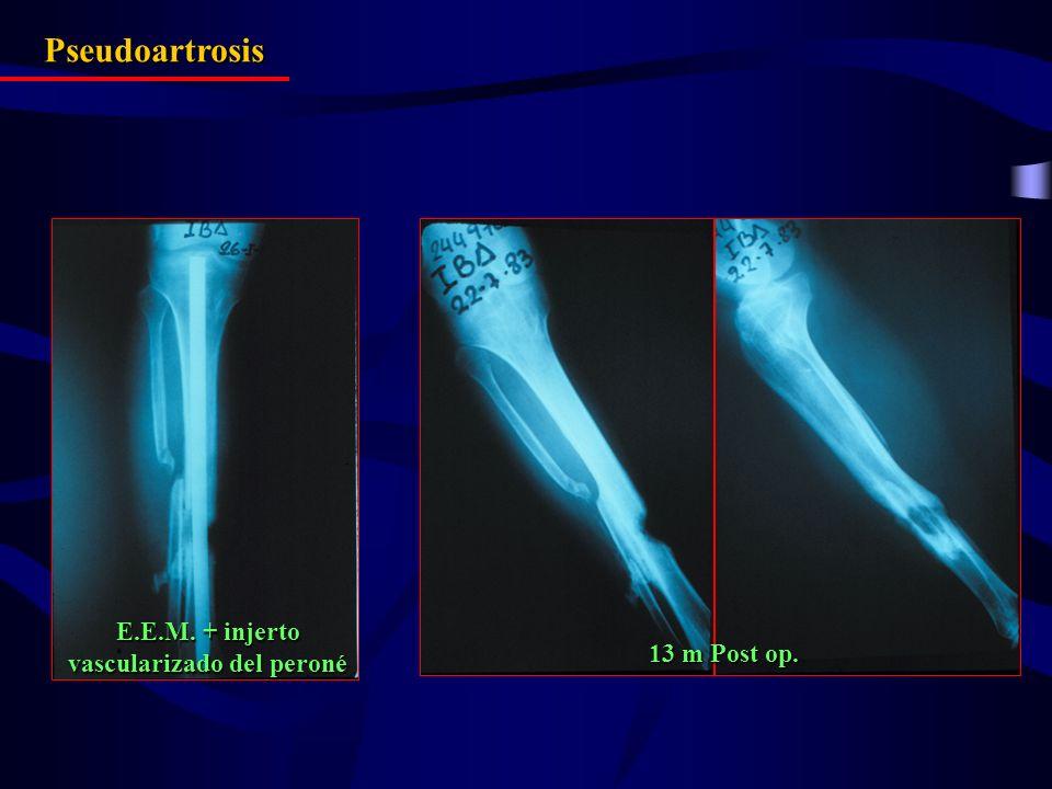 Pseudoartrosis 13 m Post op. E.E.M. + injerto vascularizado del peroné