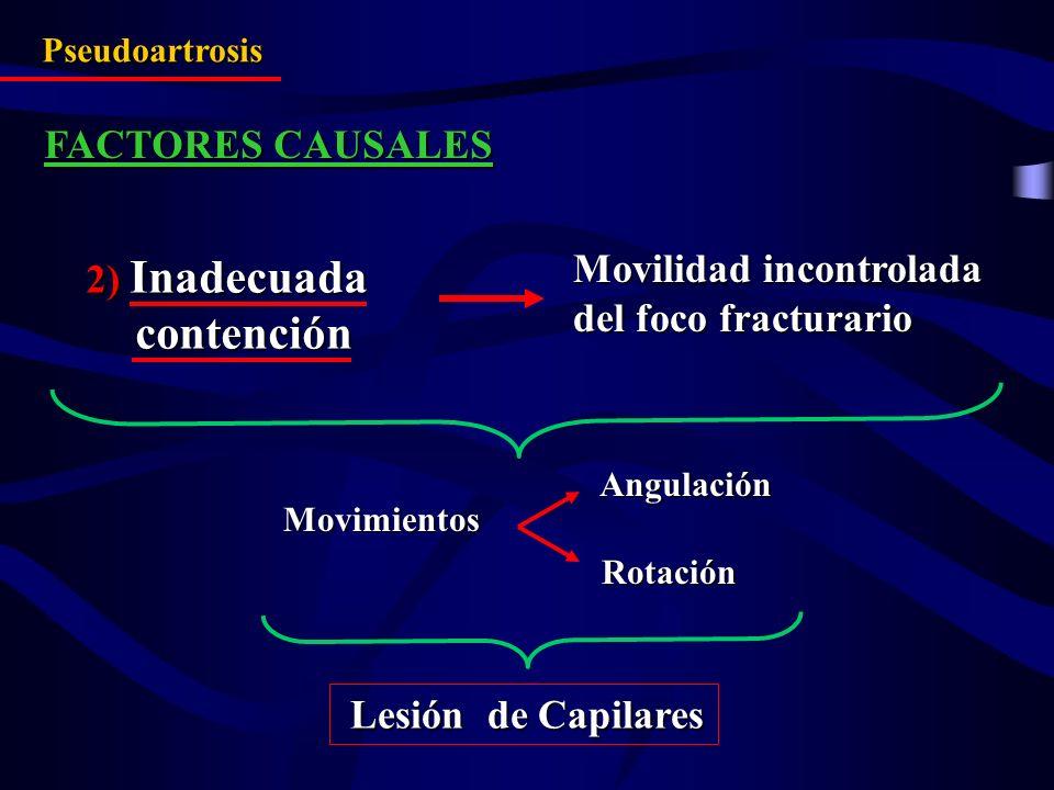 Pseudoartrosis FACTORES CAUSALES Movilidad incontrolada del foco fracturario Lesión de Capilares Lesión de Capilares Movimientos MovimientosAngulación