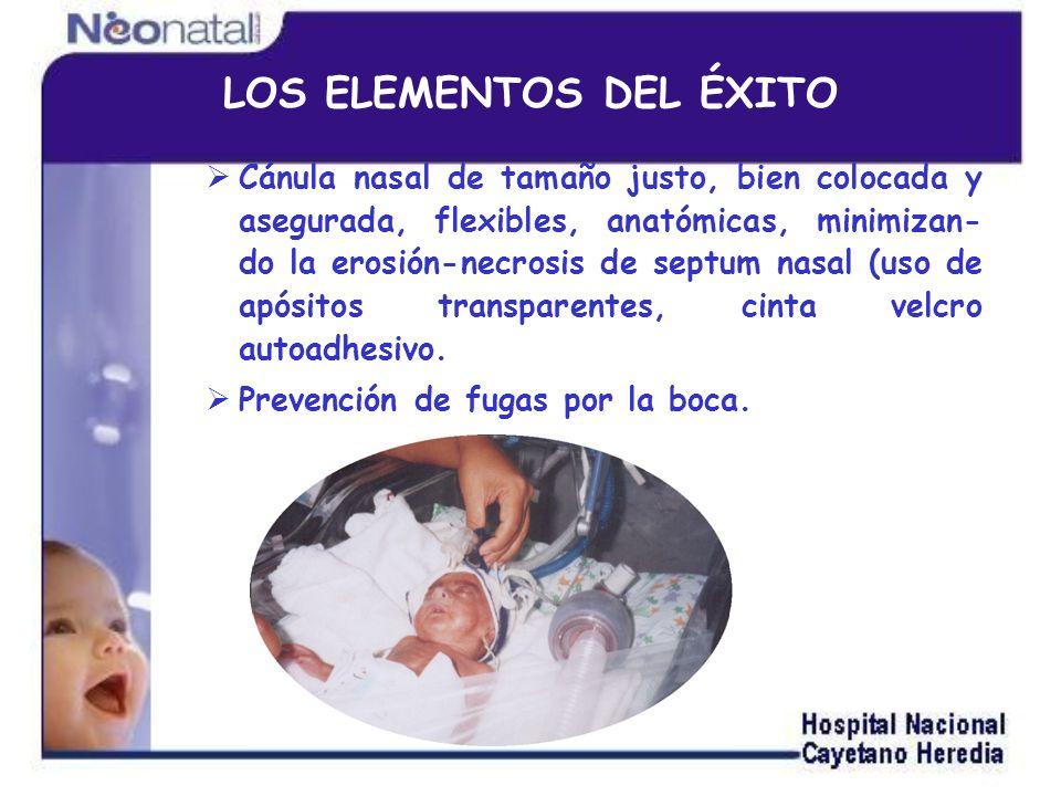 Cánula nasal Buen sellado = Presión adecuada y confiable Corta y de diámetro máximo: Minimización del Trabajo Respiratorio