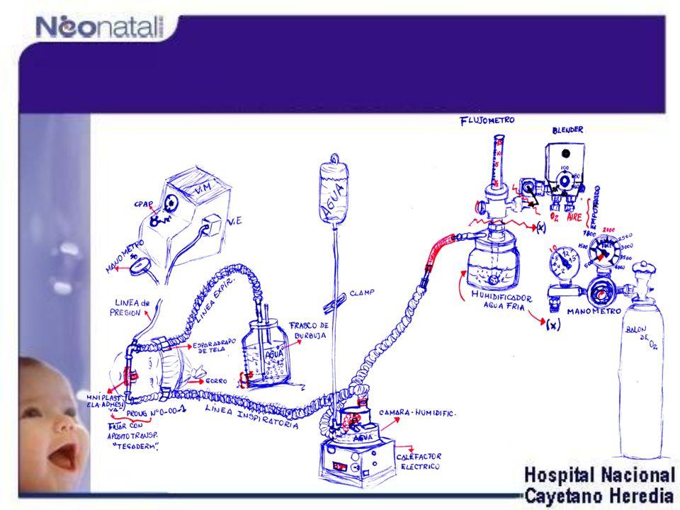 CPAP de Burbuja con oxígeno al 100% CPAP de Burbuja con oxígeno y aire comprimido sin calefacción