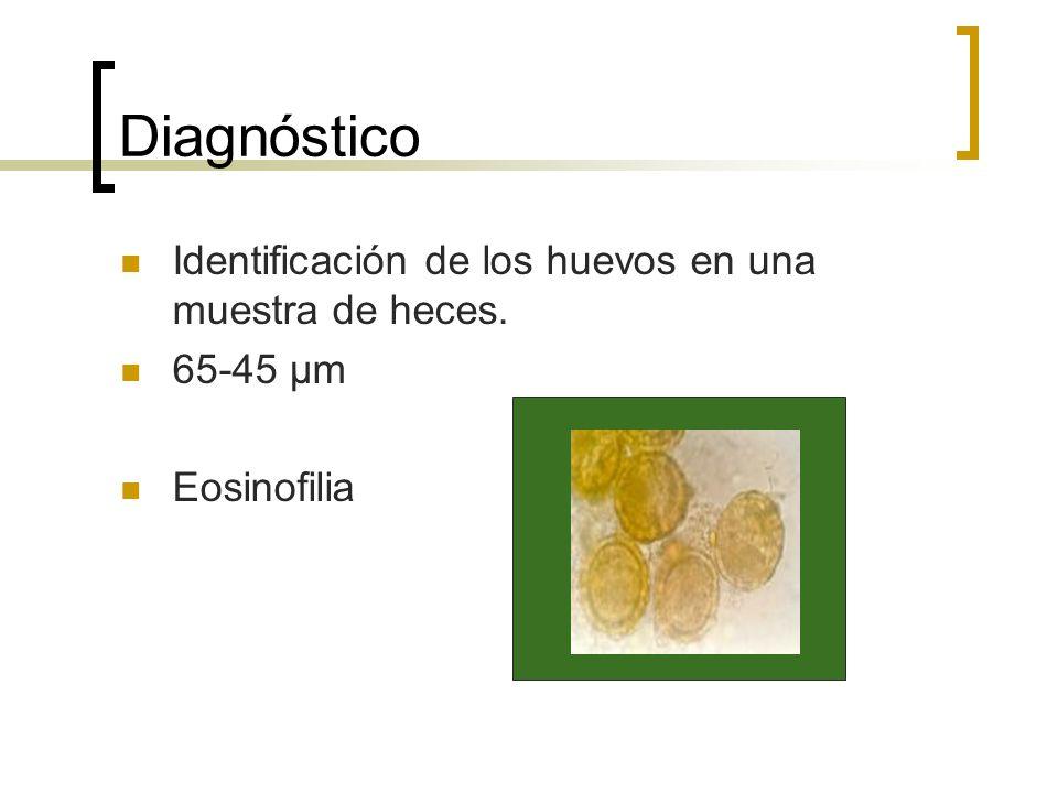 Diagnóstico Identificación de los huevos en una muestra de heces. 65-45 μm Eosinofilia
