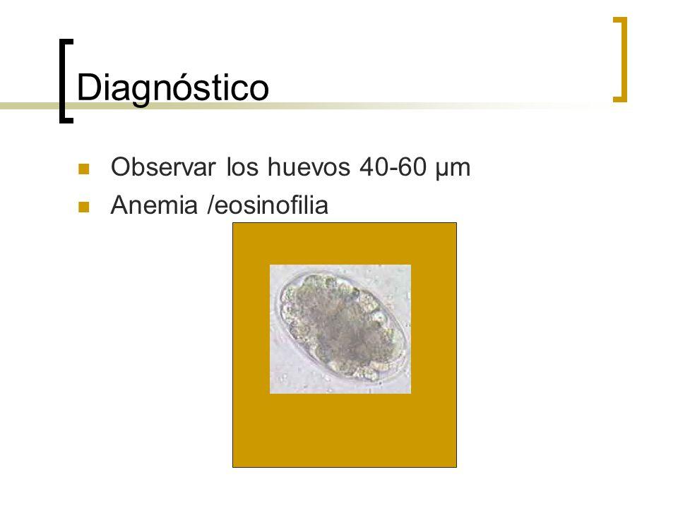 Diagnóstico Observar los huevos 40-60 μm Anemia /eosinofilia