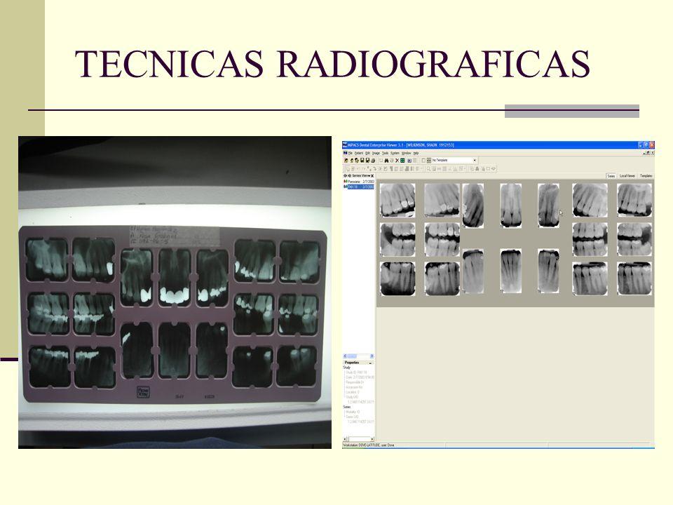 TECNICAS RADIOGRAFICAS LA RADIOGRAFÍA SIRVE COMO UN SISTEMA DE AYUDA DIAGNÓSTICA.