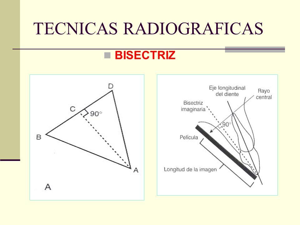 TECNICAS RADIOGRAFICAS PERIAPICAL: TECNICA DE LA BISECTRIZ DEL ANGULO, TECNICA BISECTAL, TECNICA DE CONO CORTO