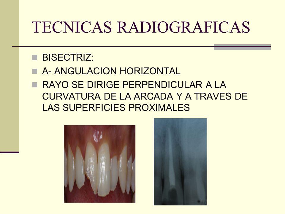 TECNICAS RADIOGRAFICAS BISECTRIZ