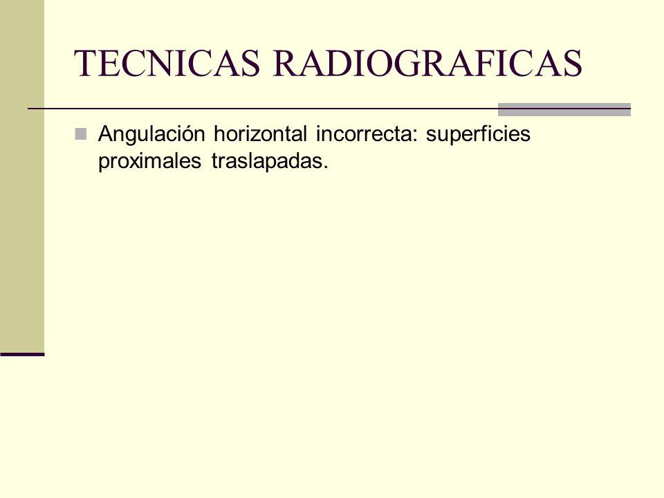 TECNICAS RADIOGRAFICAS BISECTRIZ: A- ANGULACION HORIZONTAL RAYO SE DIRIGE PERPENDICULAR A LA CURVATURA DE LA ARCADA Y A TRAVES DE LAS SUPERFICIES PROX