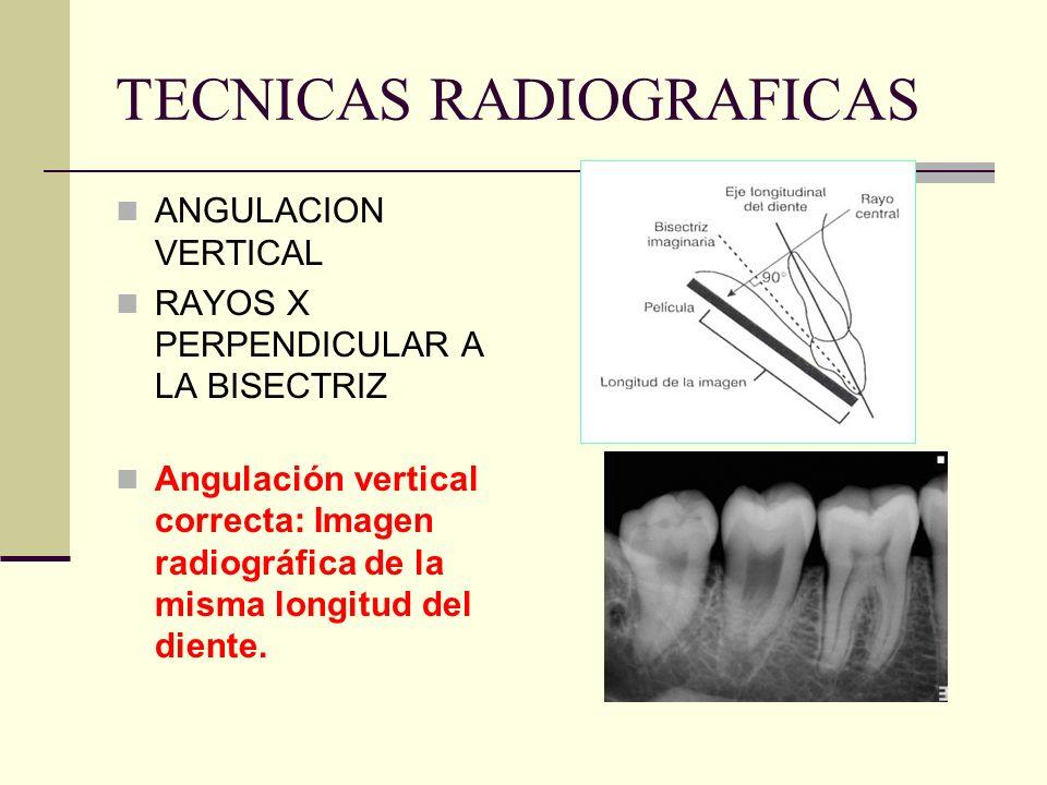 TECNICAS RADIOGRAFICAS Angulación horizontal incorrecta: superficies proximales traslapadas.