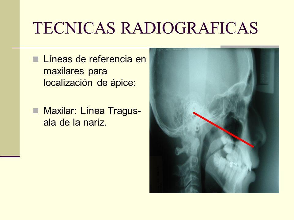 TECNICAS RADIOGRAFICAS Angulación vertical incorrecta: Imagen radiográfica de mayor longitud que la real Distorsión vertical: elongación.