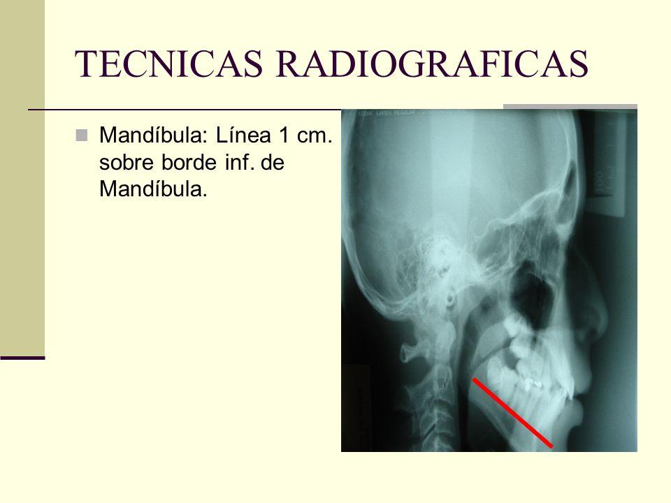 TECNICAS RADIOGRAFICAS Líneas de referencia en maxilares para localización de ápice: Maxilar: Línea Tragus- ala de la nariz.