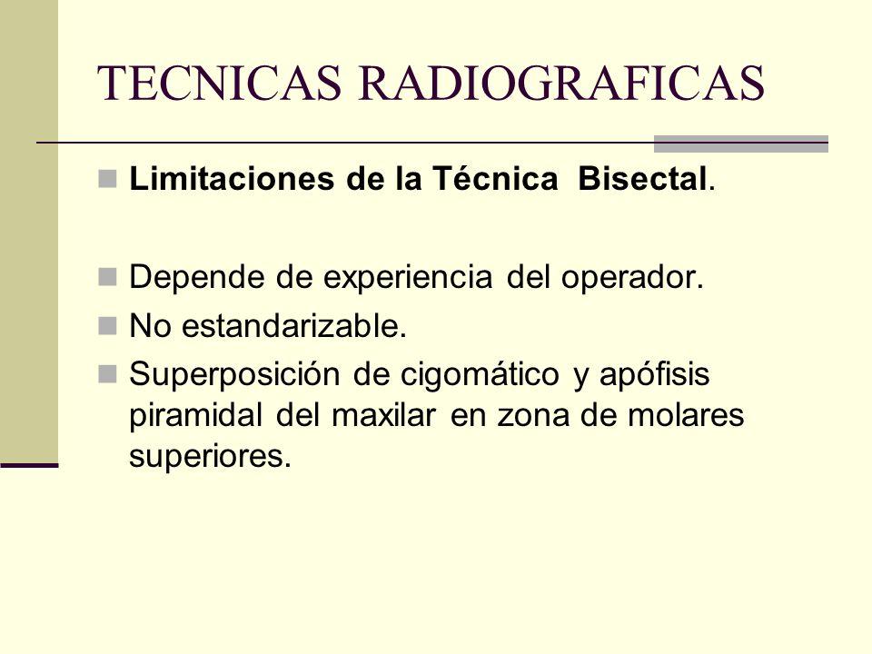TECNICAS RADIOGRAFICAS Pieza en centro de la radiografía