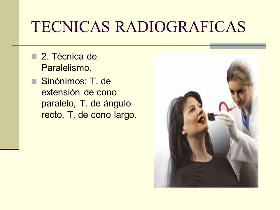 TECNICAS RADIOGRAFICAS Limitaciones de la Técnica Bisectal. Depende de experiencia del operador. No estandarizable. Superposición de cigomático y apóf