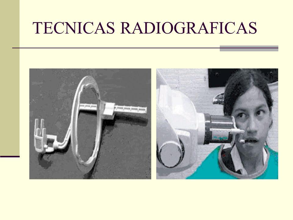 TECNICAS RADIOGRAFICAS Limitaciones Uso de dispositivo aumenta distancia objeto- película. Mayor tiempo de exposición. Dificultad en pacientes con bóv