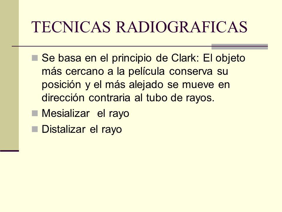 TECNICAS RADIOGRAFICAS Uso de distorsión lateral para localización y evaluación de conductos en sentido vestíbulo-palatino. Se fija la angulación vert