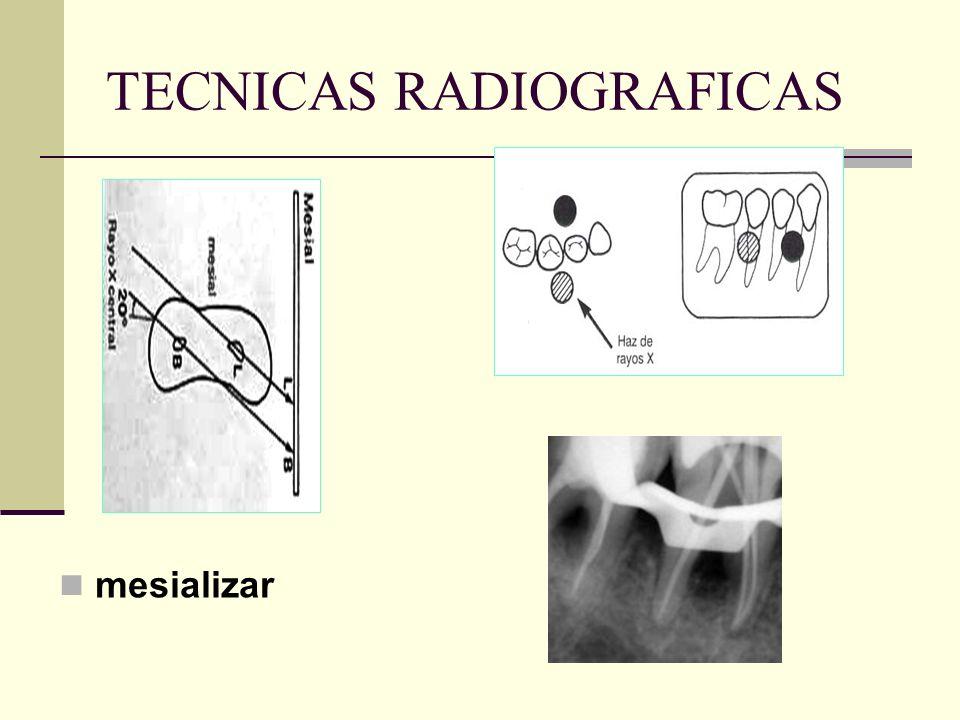 TECNICAS RADIOGRAFICAS periapical