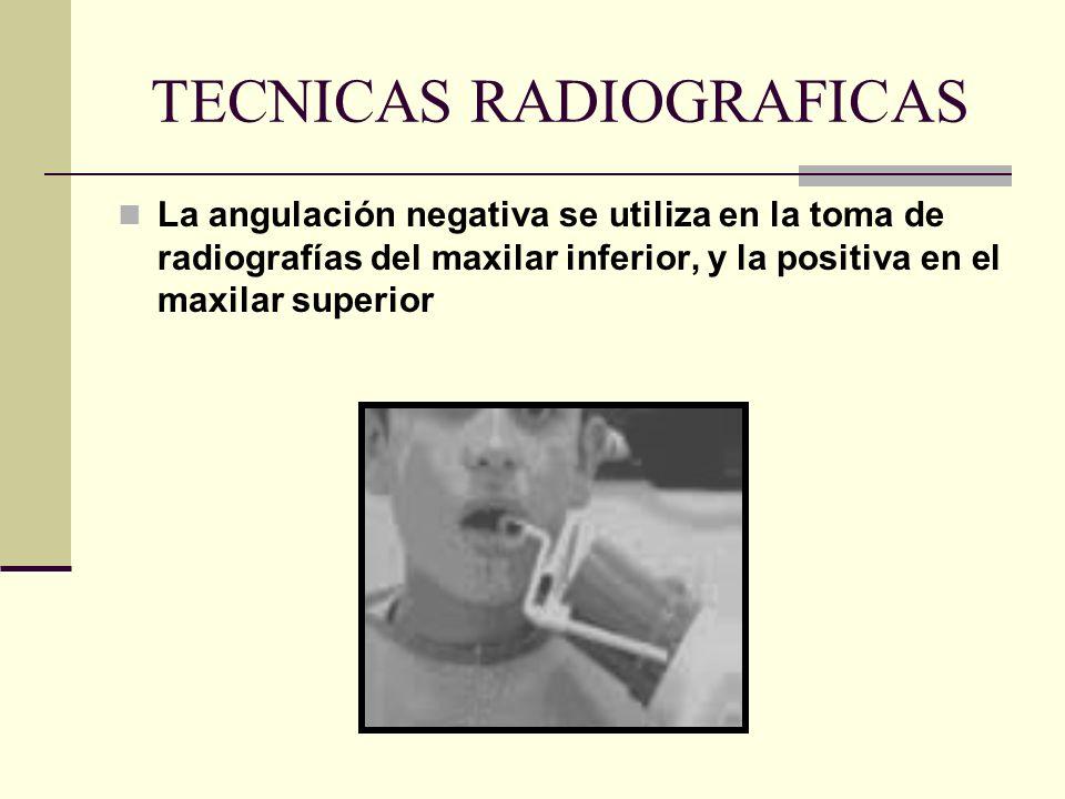 Modificacion en la angulación vertical: En una angulación positiva, las raíces vestibulares se alejan del cono o se acortan y las linguales o palatina