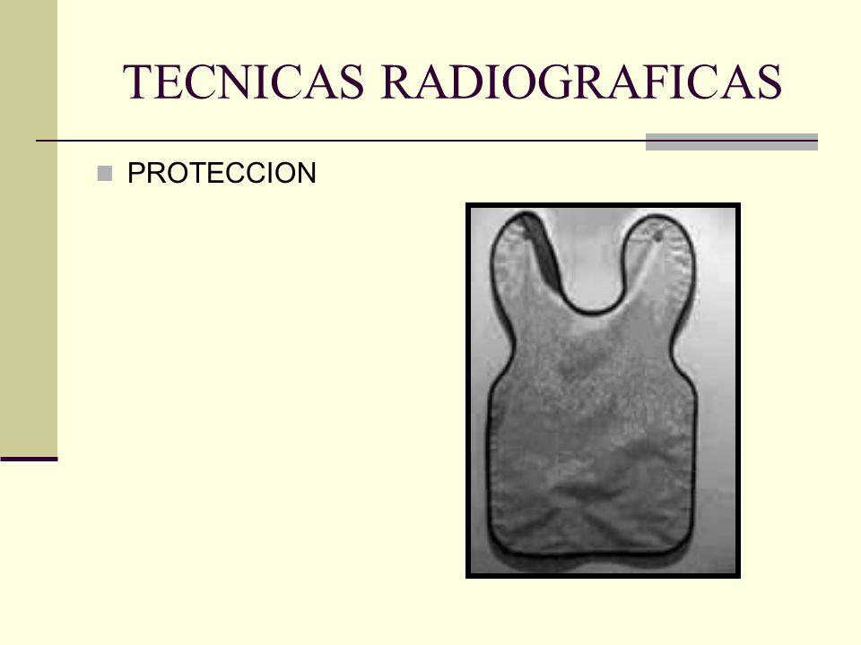 TECNICAS RADIOGRAFICAS La angulación negativa se utiliza en la toma de radiografías del maxilar inferior, y la positiva en el maxilar superior