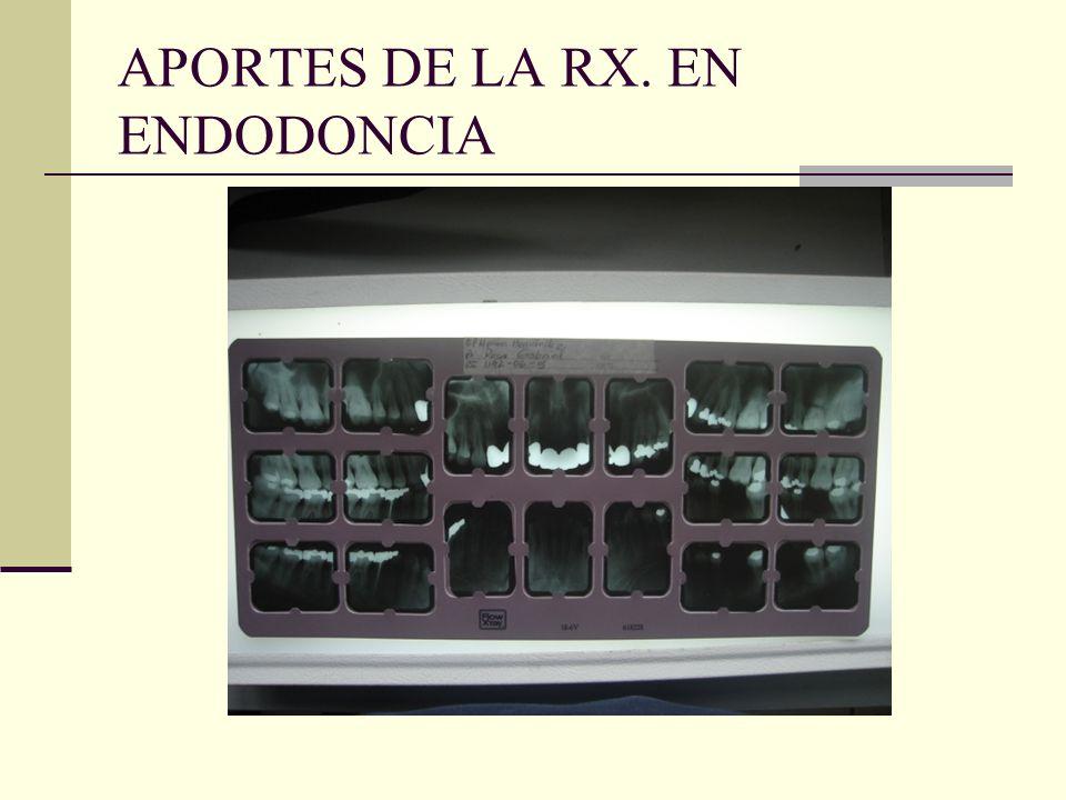 1. EXAMEN (RX. INICIAL) CARIES, VISUALIZACION DE LA CAMARA Y CONDUCTOS RADICULARES.