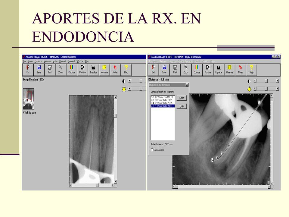 2. GUIA DURANTE EL CURSO DEL TRATAMIENTO RADICULAR. -Conductometría -Conometría -Obturación (penacho)