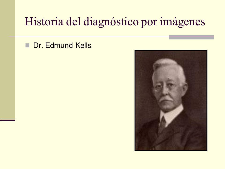 Historia del diagnóstico por imágenes 1896 NY W. J. Morton