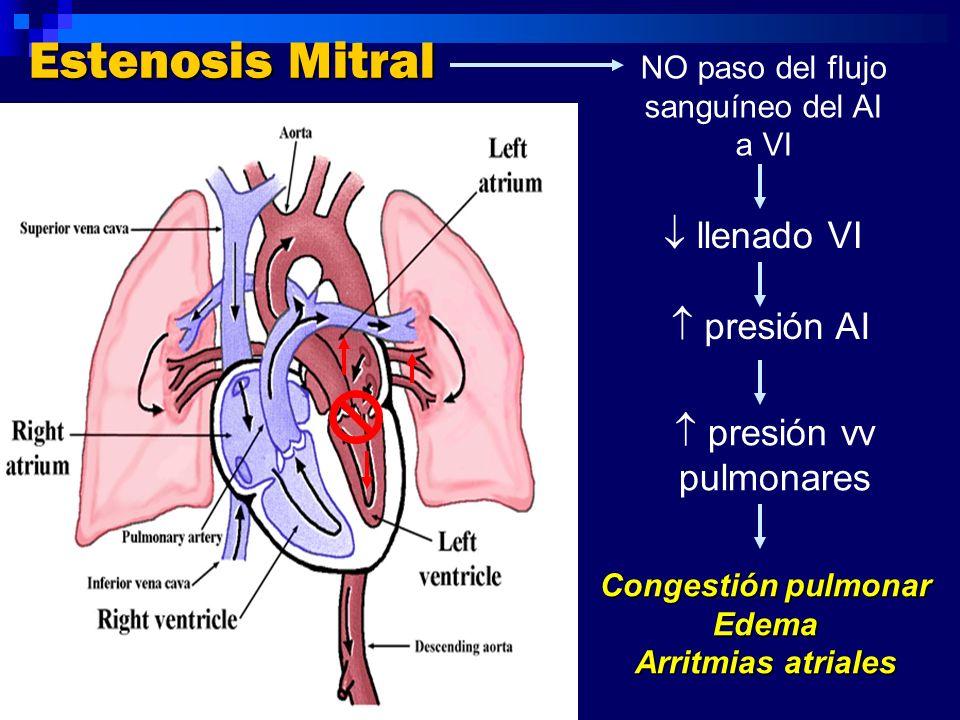 Estenosis Mitral Congestión pulmonar Edema Arritmias atriales NO paso del flujo sanguíneo del AI a VI presión AI presión vv pulmonares llenado VI
