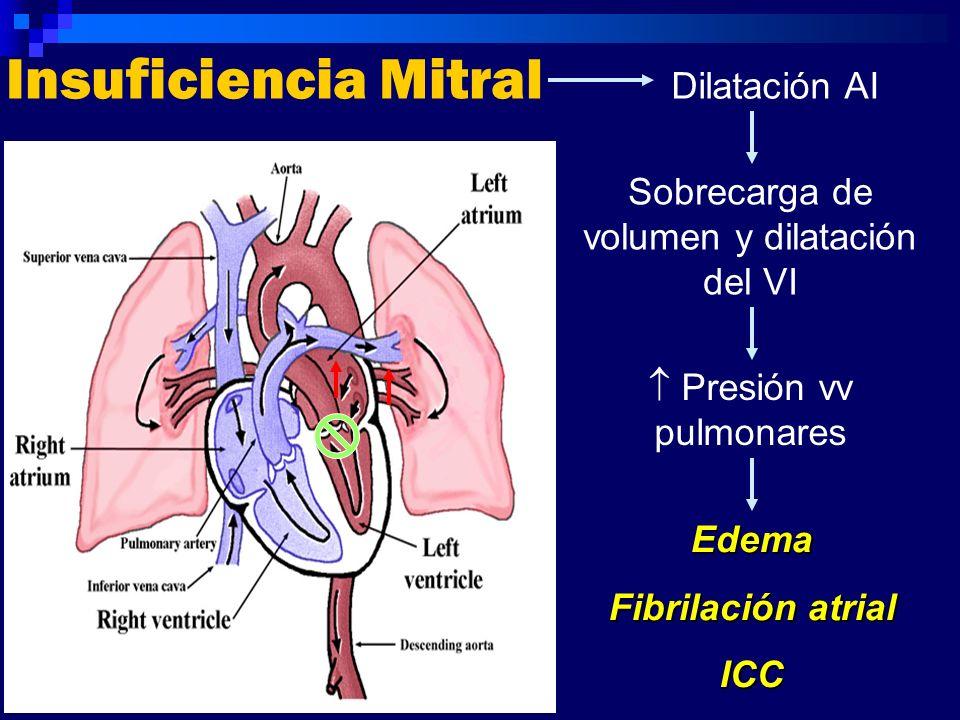Insuficiencia Mitral Dilatación AI Sobrecarga de volumen y dilatación del VI Presión vv pulmonares Edema Fibrilación atrial ICC