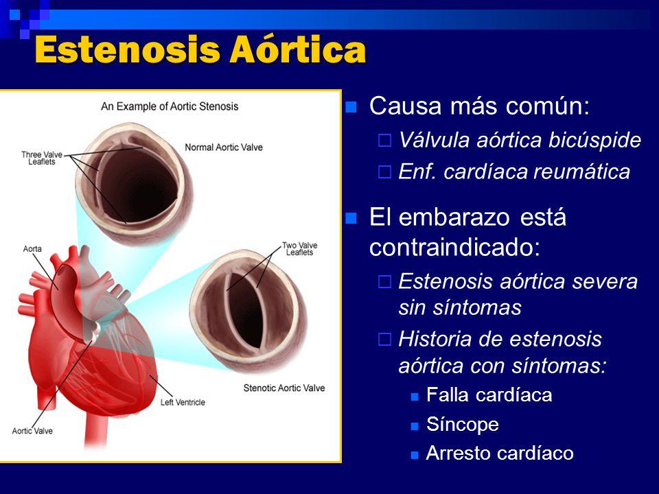Estenosis Aórtica Causa más común: Válvula aórtica bicúspide Enf. cardíaca reumática El embarazo está contraindicado: Estenosis aórtica severa sin sín