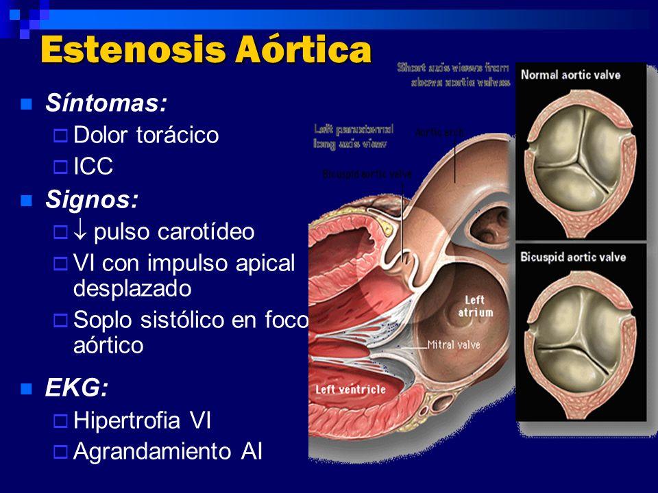 Síntomas: Dolor torácico ICC Signos: pulso carotídeo VI con impulso apical desplazado Soplo sistólico en foco aórtico EKG: Hipertrofia VI Agrandamient