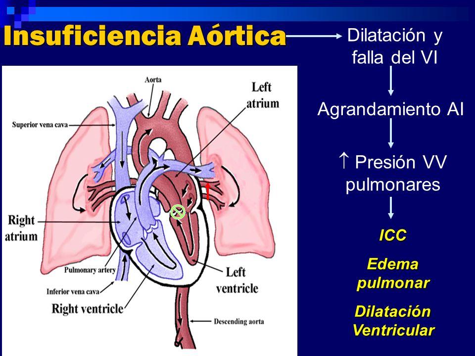 Insuficiencia Aórtica Dilatación y falla del VI Agrandamiento AI Presión VV pulmonares ICC Edema pulmonar Dilatación Ventricular