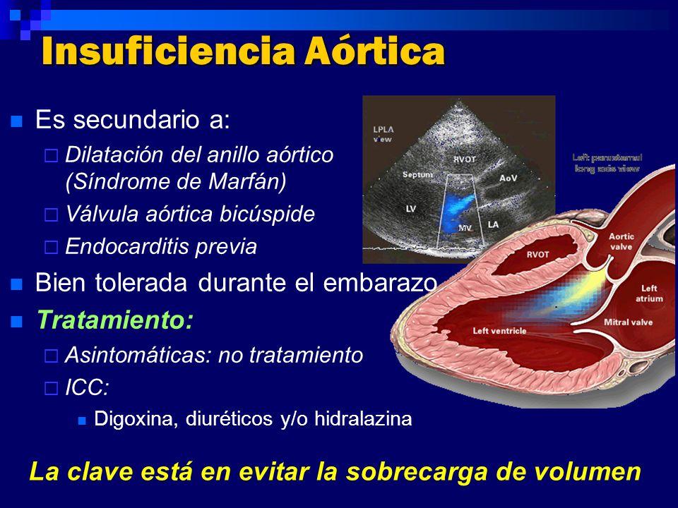 Insuficiencia Aórtica Es secundario a: Dilatación del anillo aórtico (Síndrome de Marfán) Válvula aórtica bicúspide Endocarditis previa Bien tolerada
