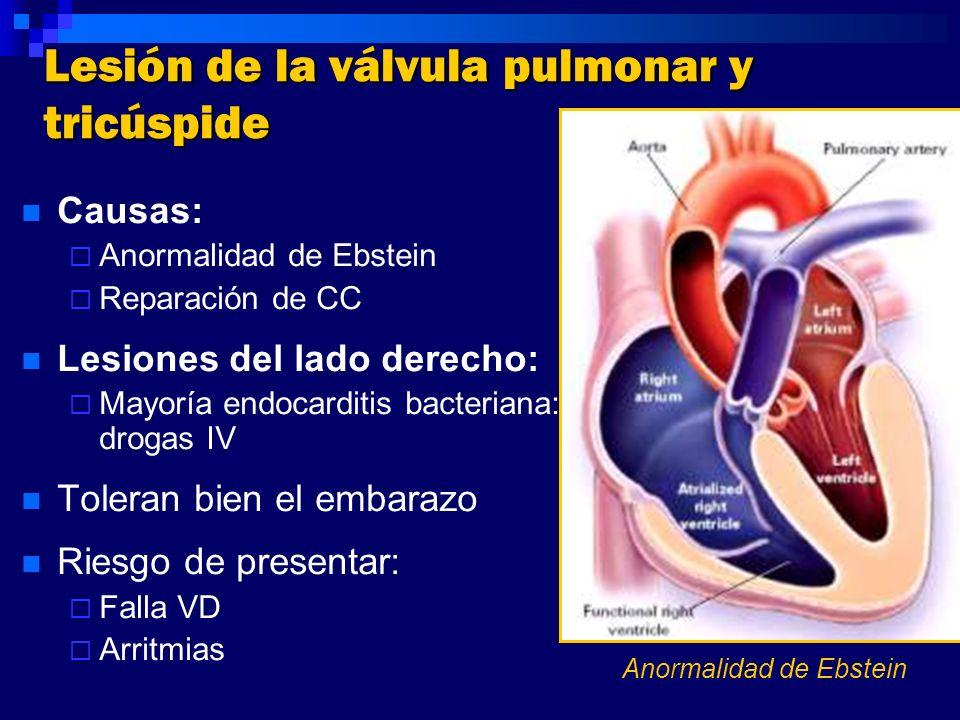 Lesión de la válvula pulmonar y tricúspide Causas: Anormalidad de Ebstein Reparación de CC Lesiones del lado derecho: Mayoría endocarditis bacteriana: