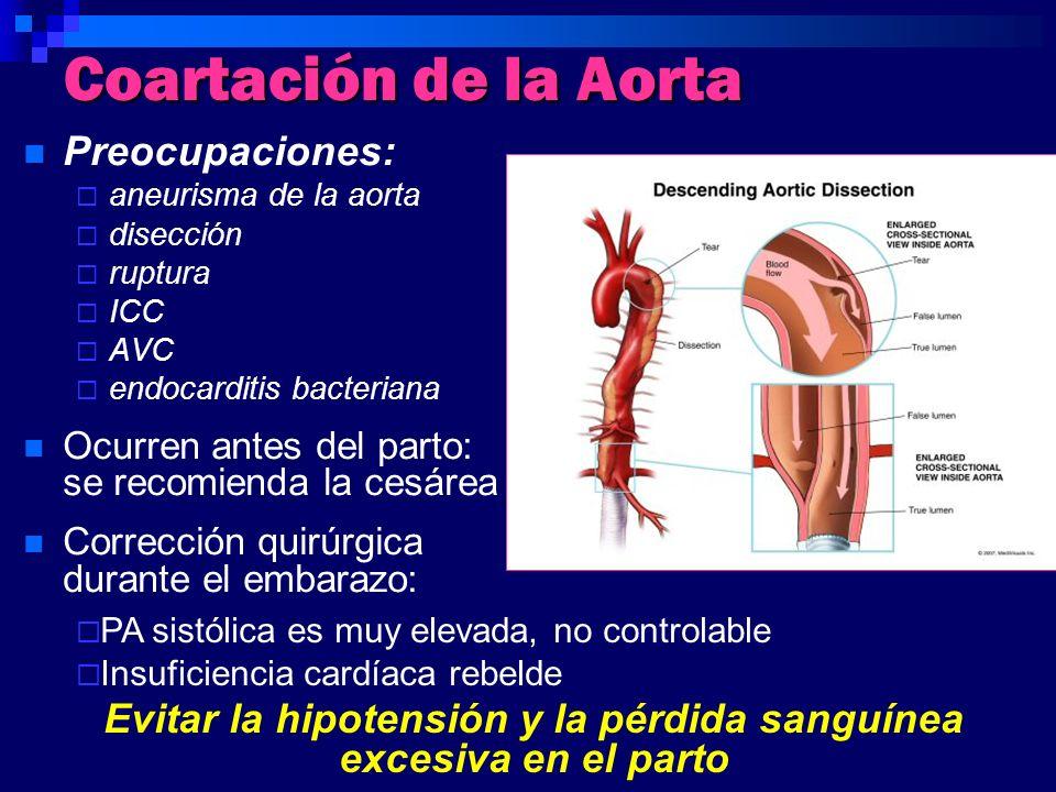 Coartación de la Aorta Preocupaciones: aneurisma de la aorta disección ruptura ICC AVC endocarditis bacteriana Ocurren antes del parto: se recomienda