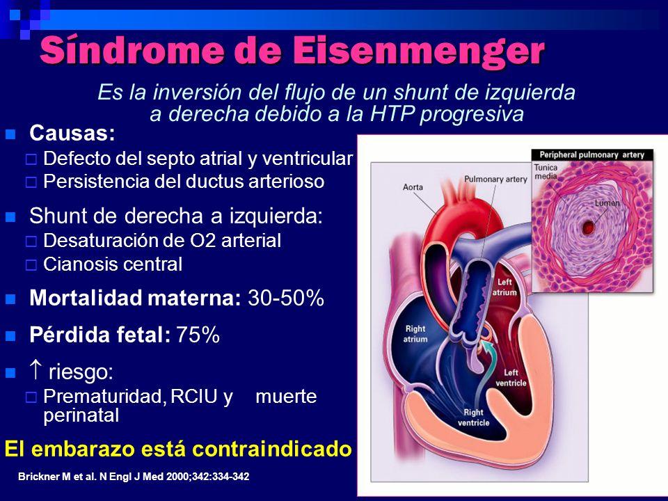 Síndrome de Eisenmenger Causas: Defecto del septo atrial y ventricular Persistencia del ductus arterioso Shunt de derecha a izquierda: Desaturación de