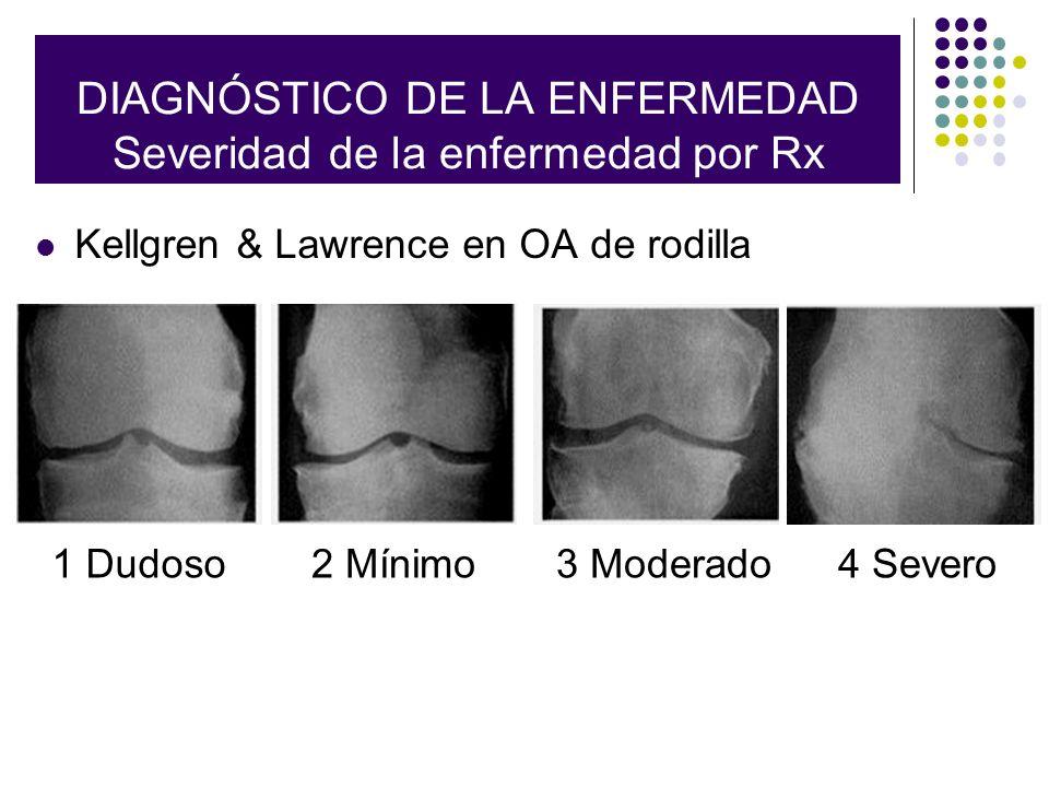 Radiographic Classification Kellgren & Lawrence en OA de rodilla DIAGNÓSTICO DE LA ENFERMEDAD Severidad de la enfermedad por Rx 1 Dudoso2 Mínimo3 Mode