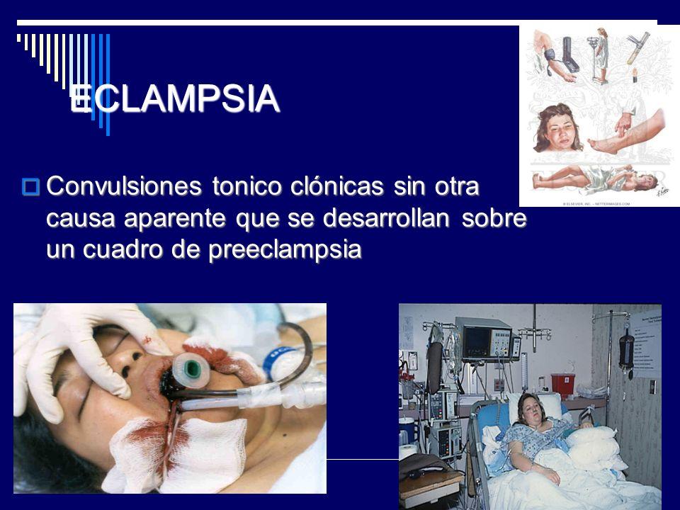 ECLAMPSIA Convulsiones tonico clónicas sin otra causa aparente que se desarrollan sobre un cuadro de preeclampsia Convulsiones tonico clónicas sin otr