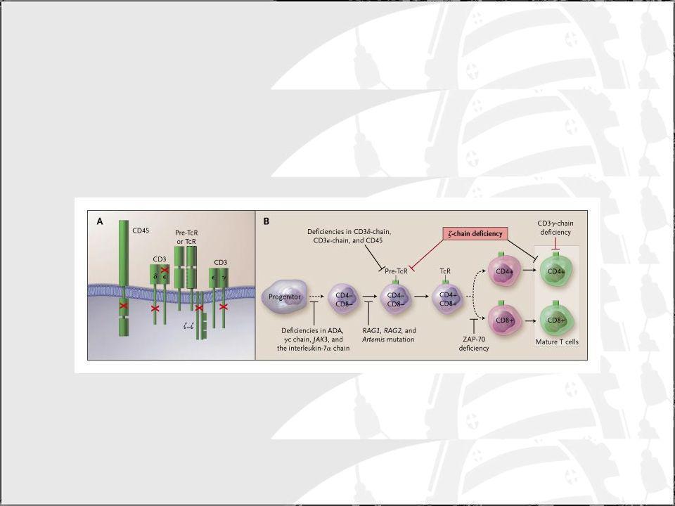 SCID ligada al cromosoma X (T-, B+, NK-) Este fenotipo se encuentra en el 50% de los pacientes con SCID.