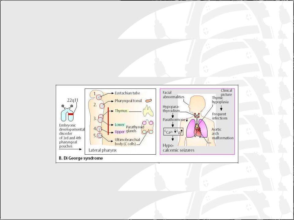 Síndrome de Wiskott-Aldrich (WAS) Ligada al cromosoma X.