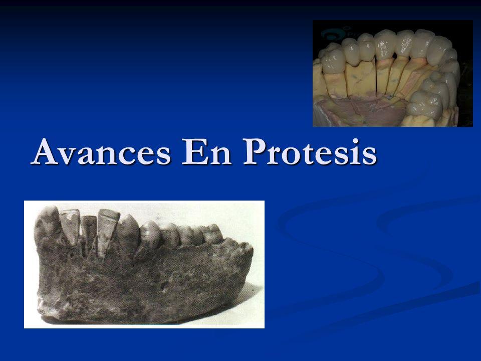 Protesis Adhesiva Se empieza a hablar por los años 80.