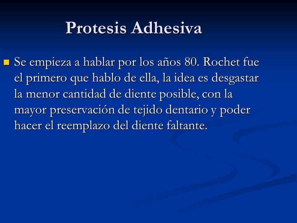Protesis Adhesiva Se empieza a hablar por los años 80. Rochet fue el primero que hablo de ella, la idea es desgastar la menor cantidad de diente posib