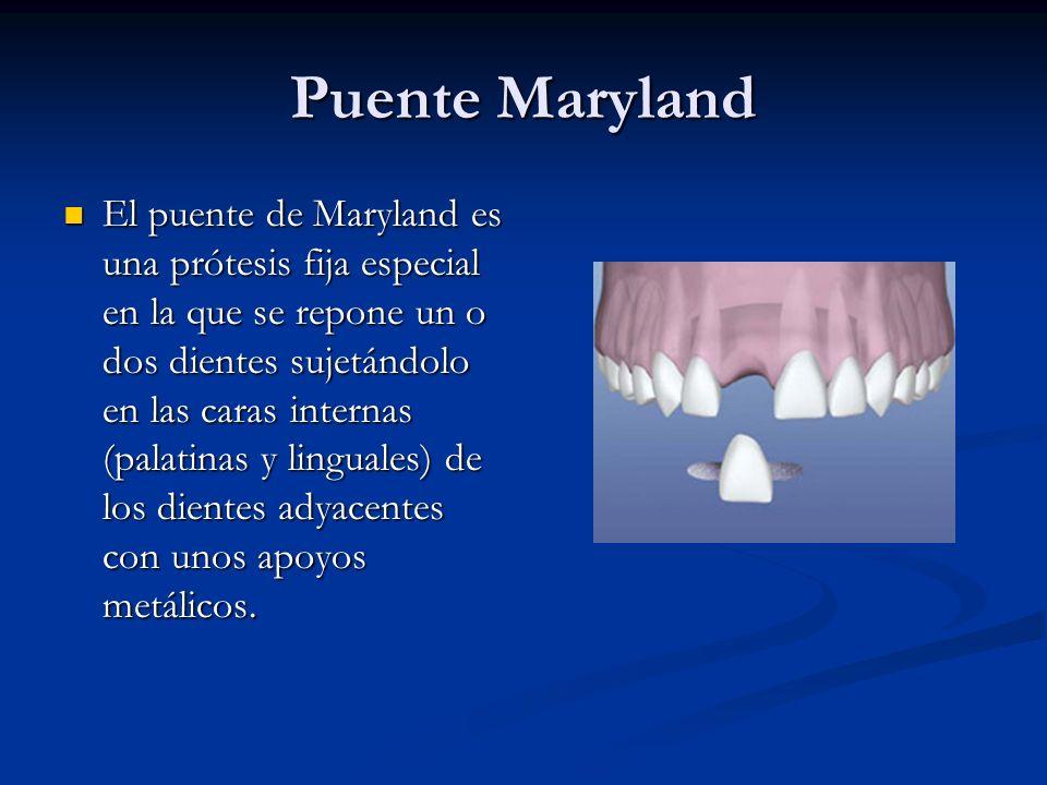 Puente Maryland El puente de Maryland es una prótesis fija especial en la que se repone un o dos dientes sujetándolo en las caras internas (palatinas