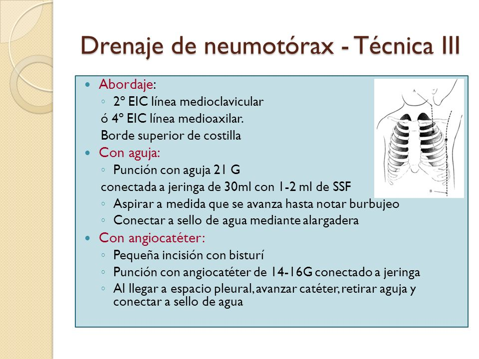Drenaje de neumotórax - Técnica III Abordaje: 2º EIC línea medioclavicular ó 4º EIC línea medioaxilar. Borde superior de costilla Con aguja: Punción c