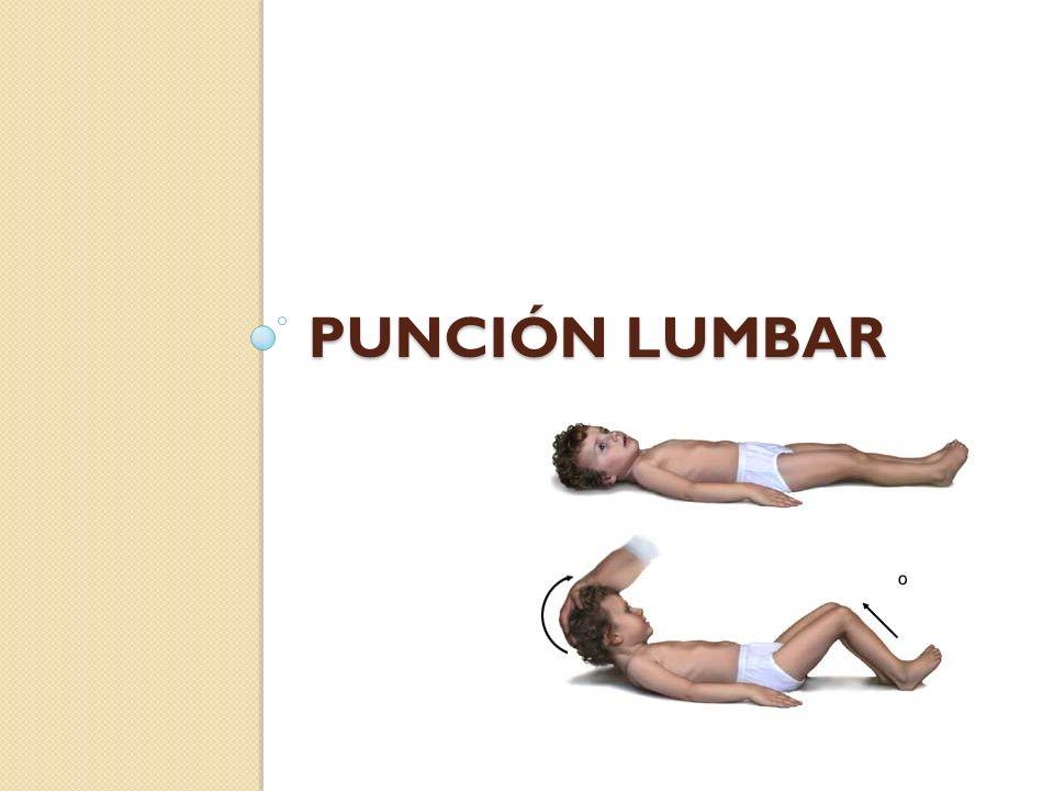 Cuerpo extraño cutáneo (IV) Extracción: Objetos que sobresalen a través de piel: no extraer directamente si espina o astilla.