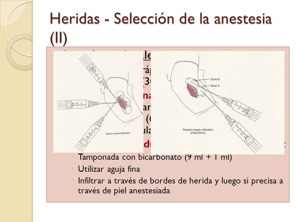 Heridas - Selección de la anestesia (II) Anestésicos locales: Lidocaína más rápido efecto de acción (3 min) y mayor duración (30-120 min) que bupivaca