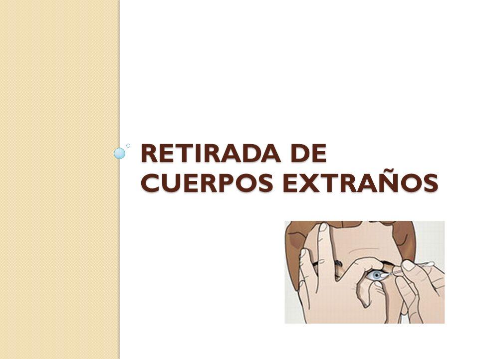 RETIRADA DE CUERPOS EXTRAÑOS