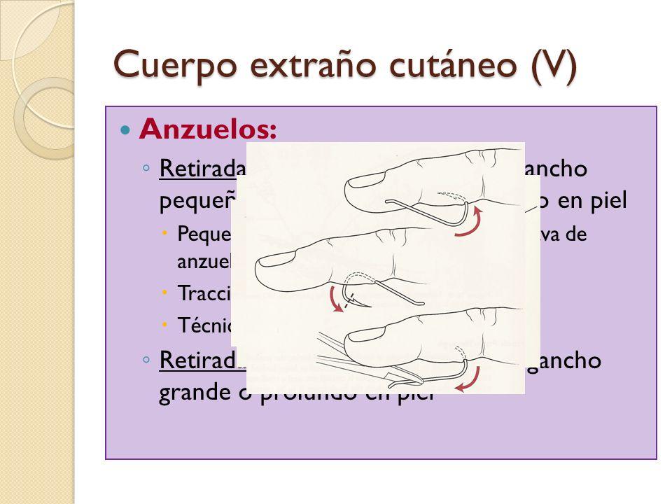 Cuerpo extraño cutáneo (V) Anzuelos: Retirada retrógrada: anzuelo con gancho pequeño y mínimamente introducido en piel Pequeña incisión a nivel de reg