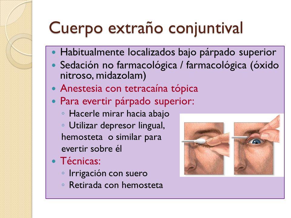 Cuerpo extraño conjuntival Habitualmente localizados bajo párpado superior Sedación no farmacológica / farmacológica (óxido nitroso, midazolam) Aneste